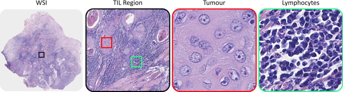 A Novel Digital Score for Abundance of Tumour Infiltrating Lymphocytes