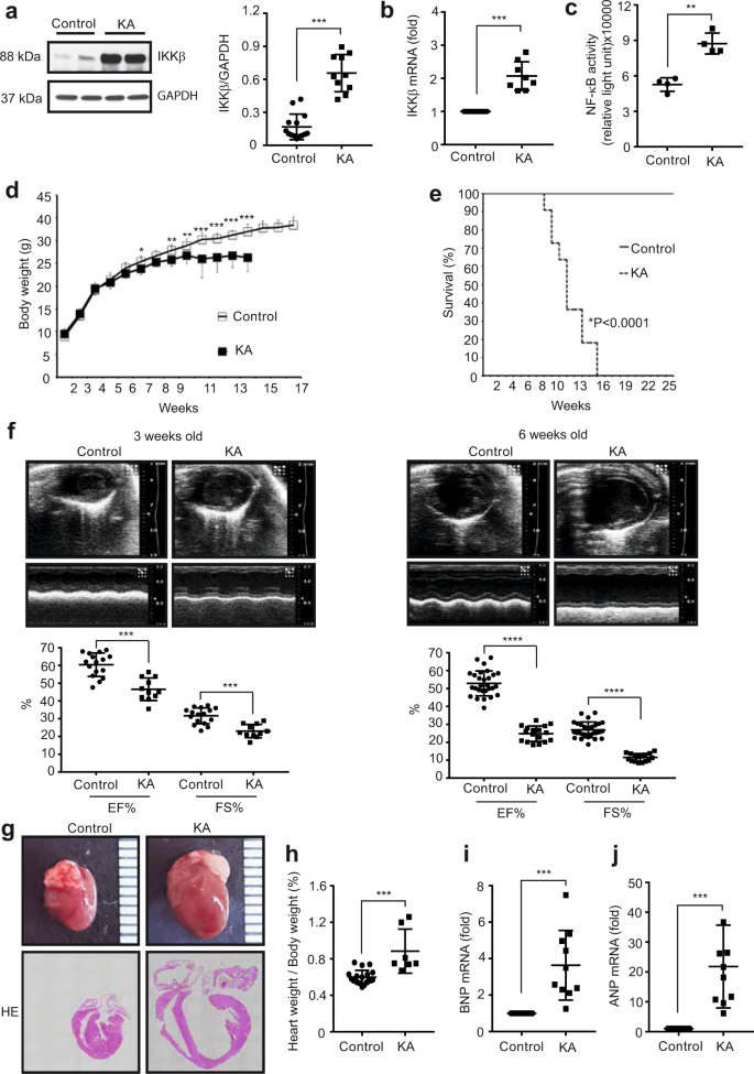 Improvement of insulin signalling rescues inflammatory cardiac dysfunc