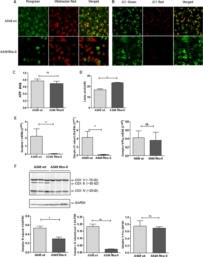 Mitochondrial dysfunction increases pro-inflammatory cytokine producti