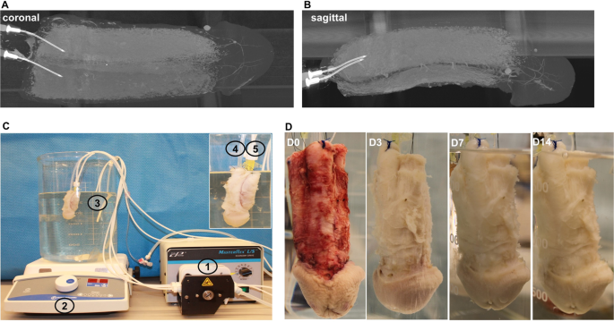 Complete Human Penile Scaffold for Composite Tissue Engineering: Organ