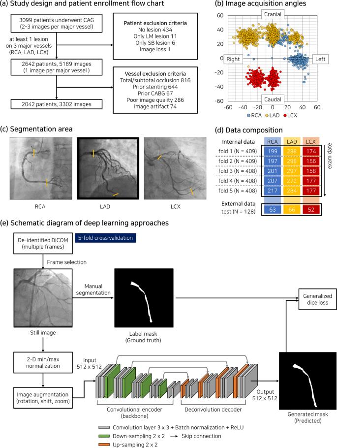 Deep learning segmentation of major vessels in X-ray coronary angiogra