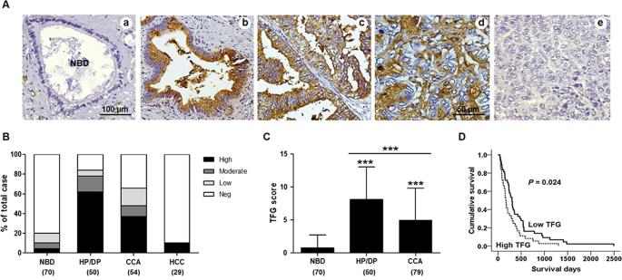 Terminal fucose mediates progression of human cholangiocarcinoma throu