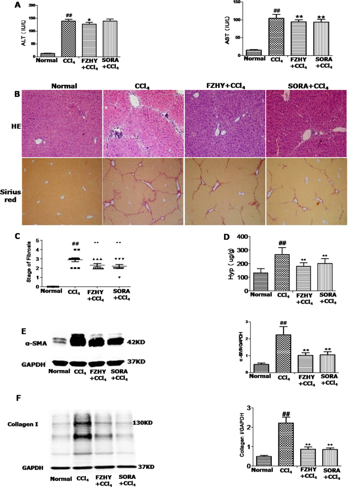 Fuzhenghuayu Decoction ameliorates hepatic fibrosis by attenuating exp