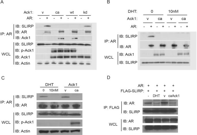 Interaction between androgen receptor and coregulator SLIRP is regulat