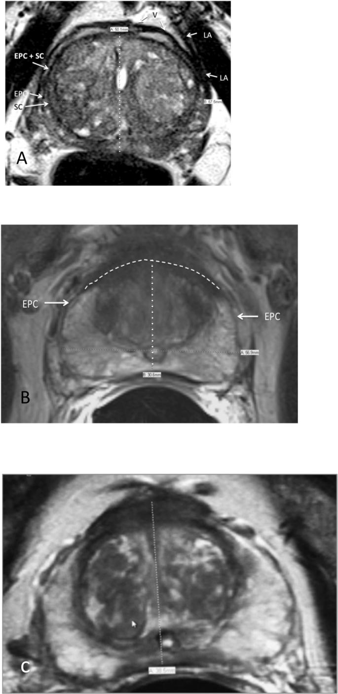 MULTIPARAMETRIC MR IMAGING OF PROSTATE TUMORS: PI-RADS V.2.1
