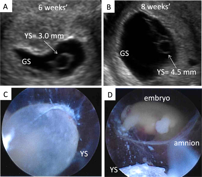 Early pregnancy ultrasound measurements and prediction of first trimester  pregnancy loss: A logistic model | Scientific Reports