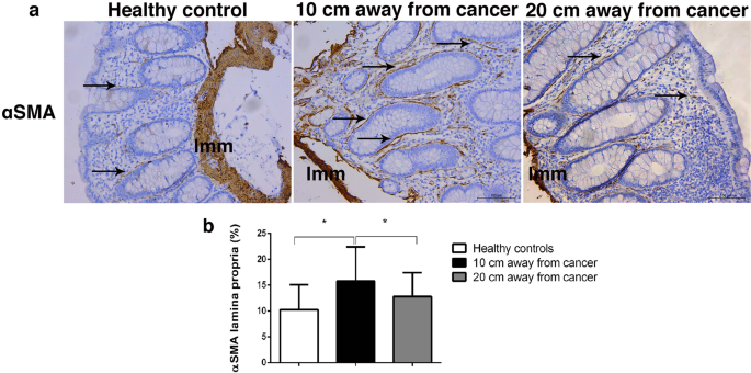 Altered Organization Of Collagen Fibers In The Uninvolved Human Colon Mucosa 10 Cm And 20 Cm Away From The Malignant Tumor Scientific Reports