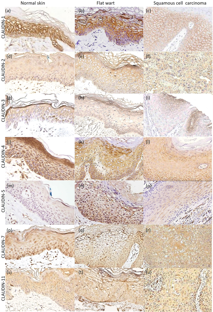 Claudin Expression Profile In Flat Wart And Cutaneous Squamous Cell Carcinoma In Epidermodysplasia Verruciformis Scientific Reports
