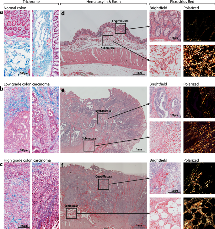 Simulating The Human Colorectal Cancer Microenvironment In 3d Tumor Stroma Co Cultures In Vitro And In Vivo Scientific Reports