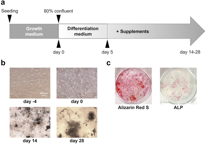 RT-qPCR analyses on the osteogenic differentiation from human ...