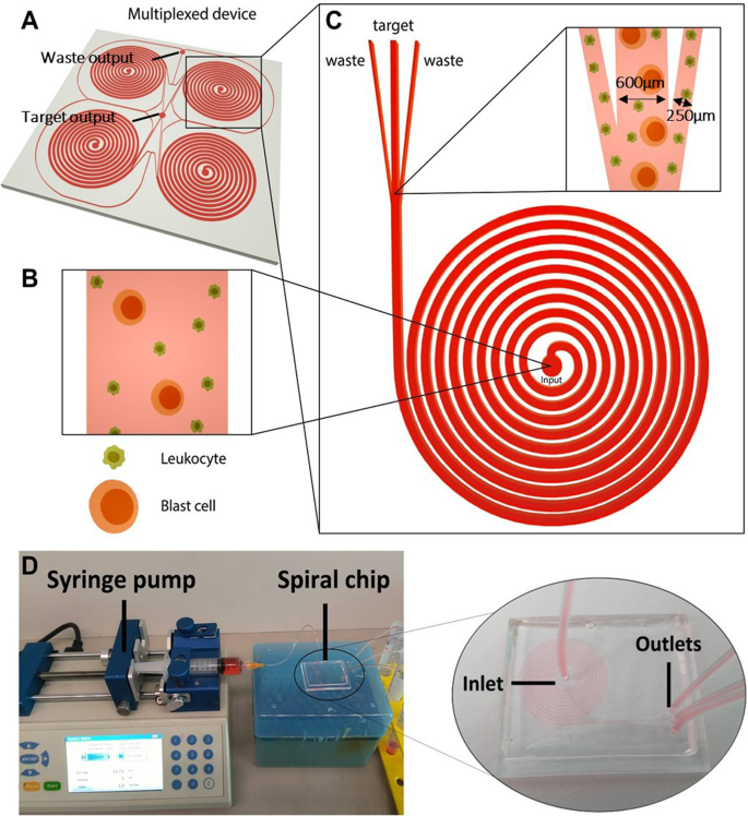 Liquid biopsy for minimal residual disease detection in leukemia using