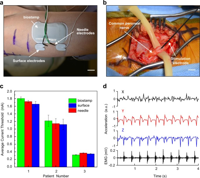 Intraoperative monitoring of neuromuscular function with