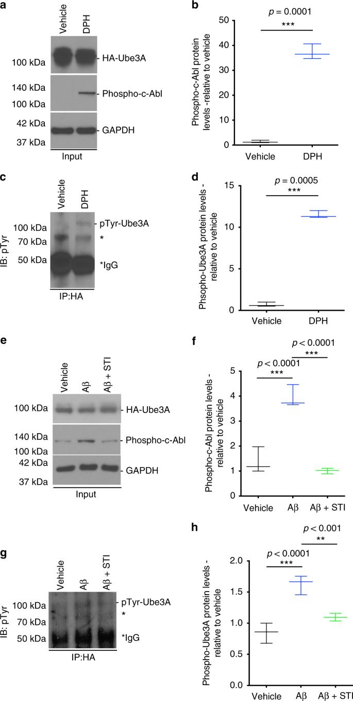 Dysfunction of the ubiquitin ligase E3A Ube3A/E6-AP contributes to