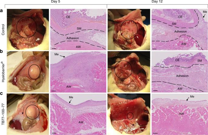 endometrium rák gpc 2021 levomekol a genitális szemölcsök áttekintésével