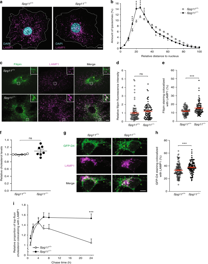 Loss of spatacsin impairs cholesterol trafficking and calcium homeosta
