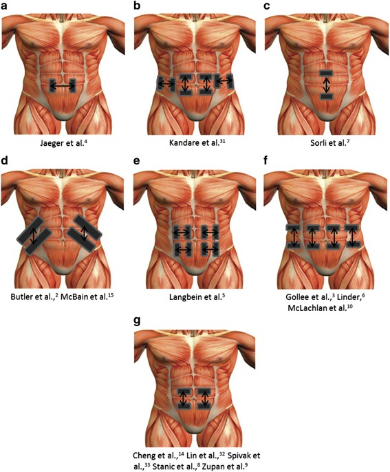 Abdominal Functional Electrical Stimulation To Improve Respiratory Function After Spinal Cord Injury A Systematic Review And Meta Analysis Spinal Cord