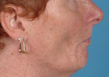 Facial atrophy following accidental subcutaneous extrusion