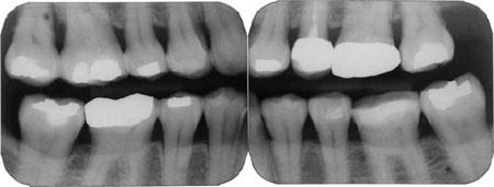 Forensic Odontology Part 1 Dental Identification British Dental Journal