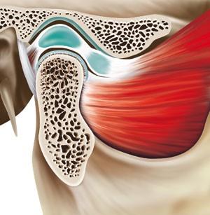 Oral Surgery Part 3 Temporomandibular Disorders British Dental