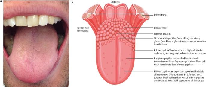 Fungiform sinonasal papilloma. Tongue Anatomy cancer kaposi sarcoma, Fungiform papilloma nasal