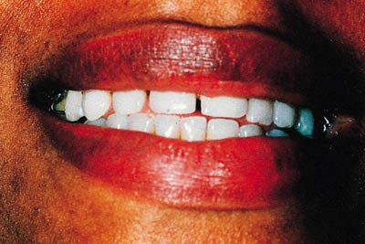 Assessment of the dentition and treatment options for the