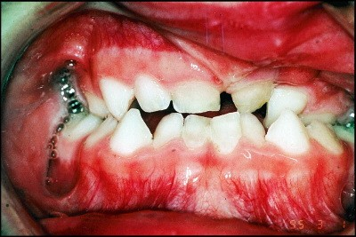 Dental care for the patient with a cleft lip and palate  Part 1