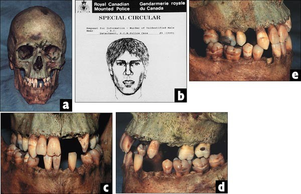 A Look At Forensic Dentistry Part 1 The Role Of Teeth In The Determination Of Human Identity British Dental Journal