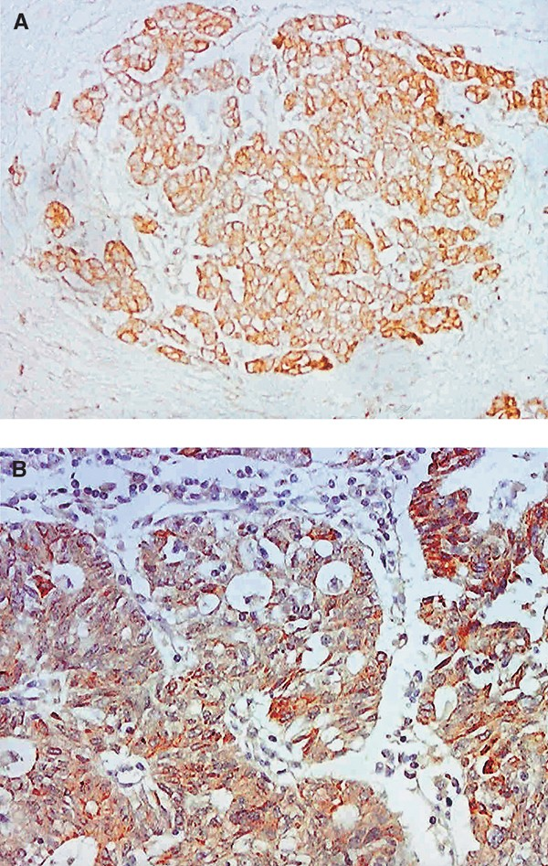 hpv 16 and ovarian cancer)