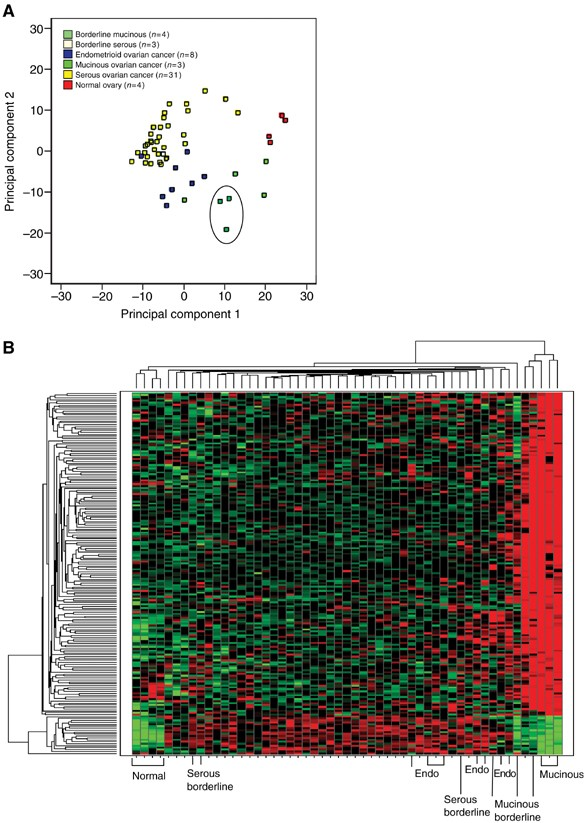 A Distinct Molecular Profile Associated With Mucinous Epithelial Ovarian Cancer British Journal Of Cancer