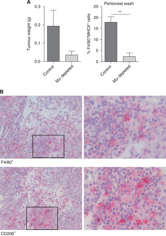 Zoledronic Acid Impairs Myeloid Differentiation To Tumour Associated Macrophages In Mesothelioma British Journal Of Cancer