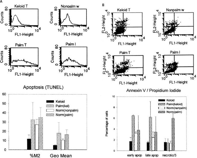 Myofibroblast phenotype and apoptosis in keloid and palmar