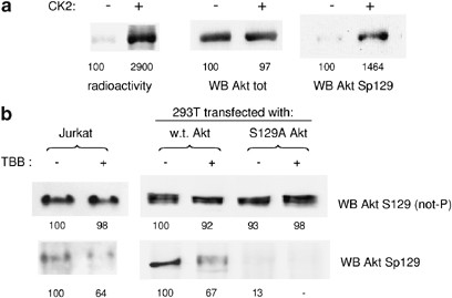 Protein kinase CK2 phosphorylates and upregulates Akt/PKB