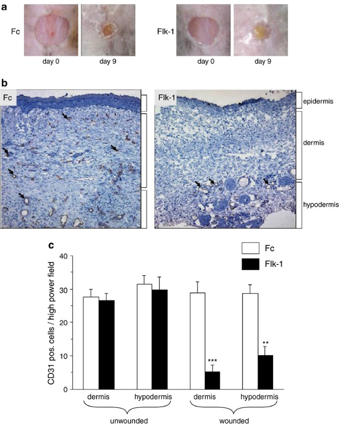 Discordant effects of a soluble VEGF receptor on wound