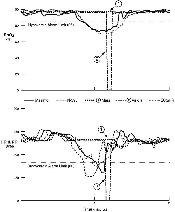 Reliability of Conventional and New Pulse Oximetry in