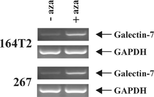 Upregulation of galectin-7 in murine lymphoma cells is associated