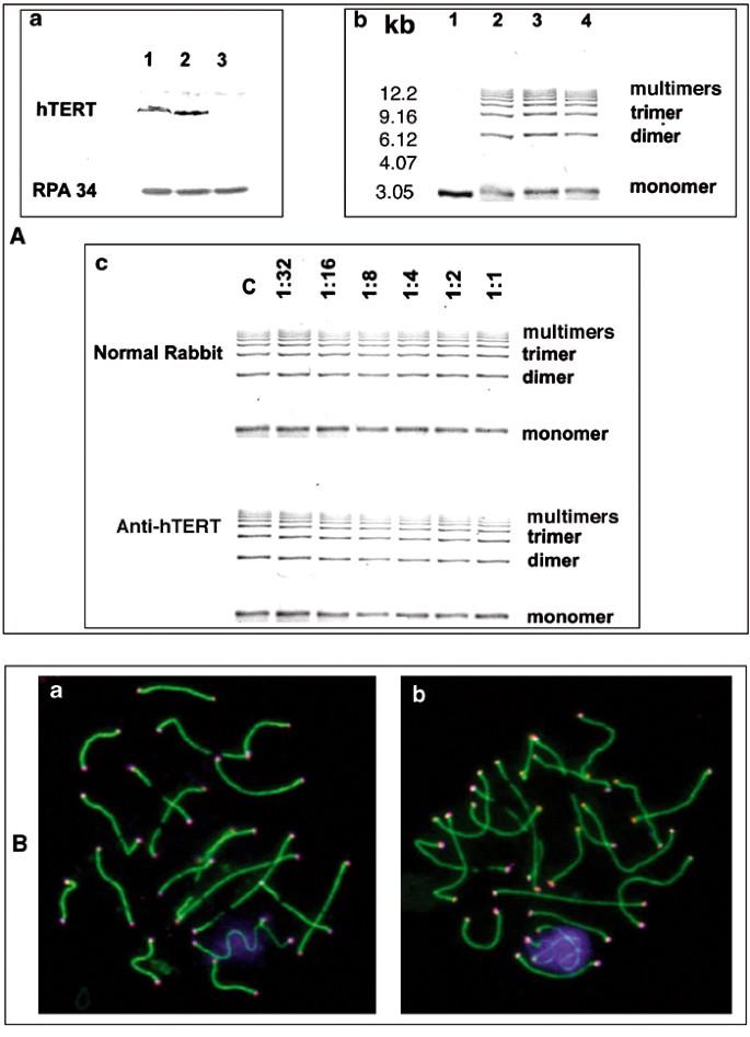 hTERT associates with human telomeres and enhances genomic
