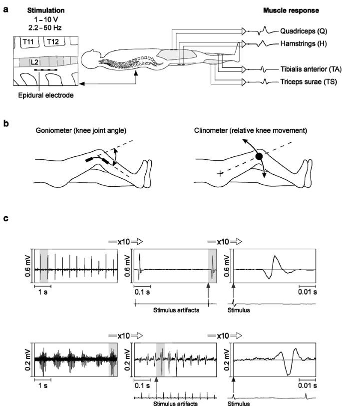 Stepping-like movements in humans with complete spinal cord