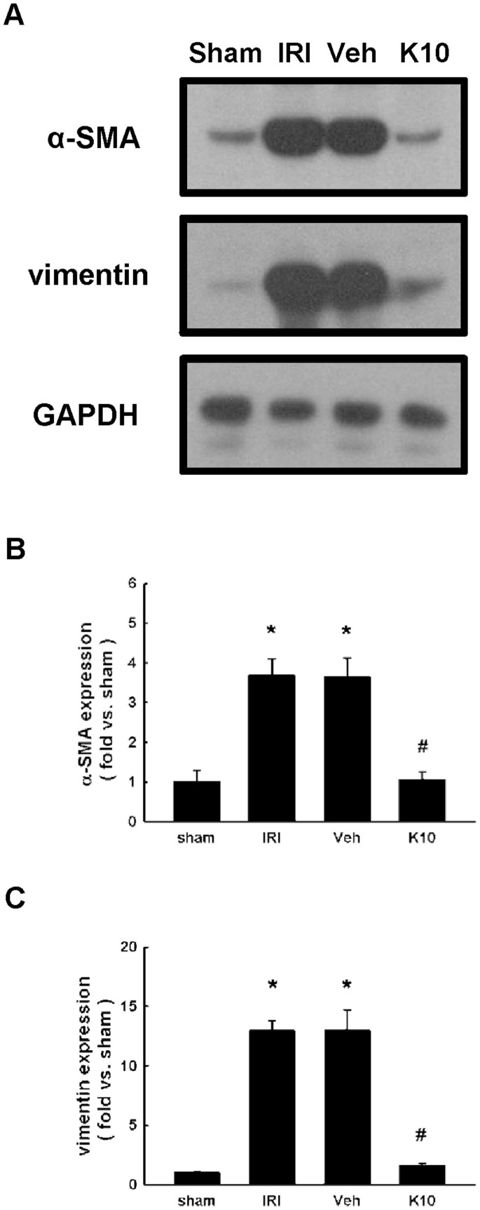 Antifibrotic effects of KS370G, a caffeamide derivative, in renal  ischemia-reperfusion injured mice and renal tubular epithelial cells |  Scientific Reports