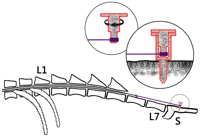 A New Model Of Tethered Cord Syndrome Produced By Slow Traction Scientific Reports Its upper part is called filum terminale internum and the lower. a new model of tethered cord syndrome