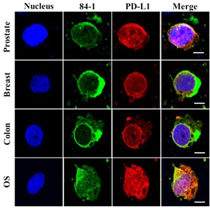 Potential Role Of Nuclear Pd L1 Expression In Cell Surface Vimentin Positive Circulating Tumor Cells As A Prognostic Marker In Cancer Patients Scientific Reports