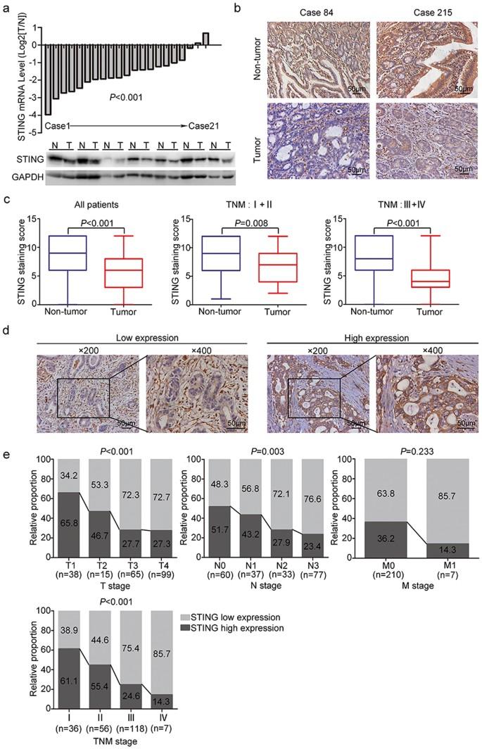 gastric cancer immunohistochemistry profile)