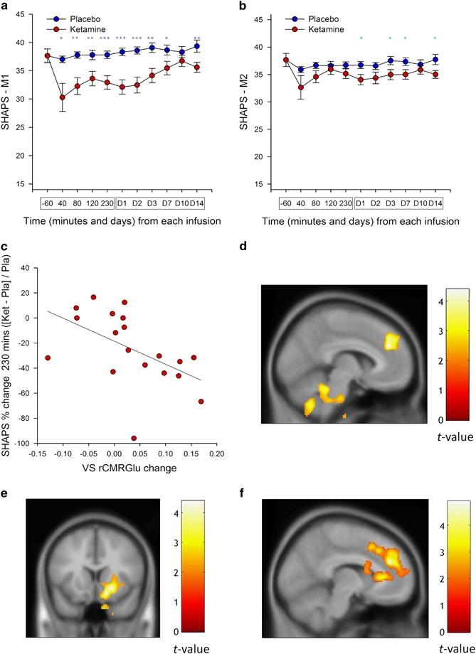 treatment resistant bipolar depression