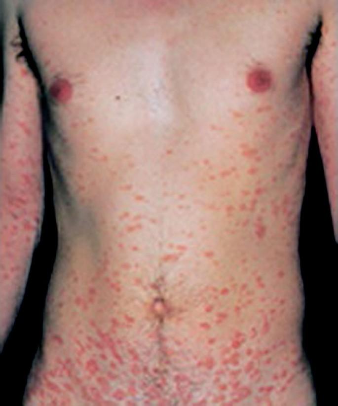 Dermatology for the Allergist | World Allergy Organization Journal