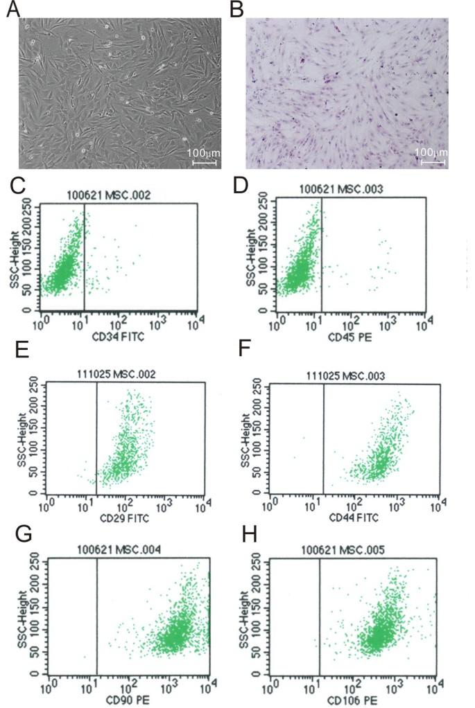 Immortalized mesenchymal stem cells: an alternative to
