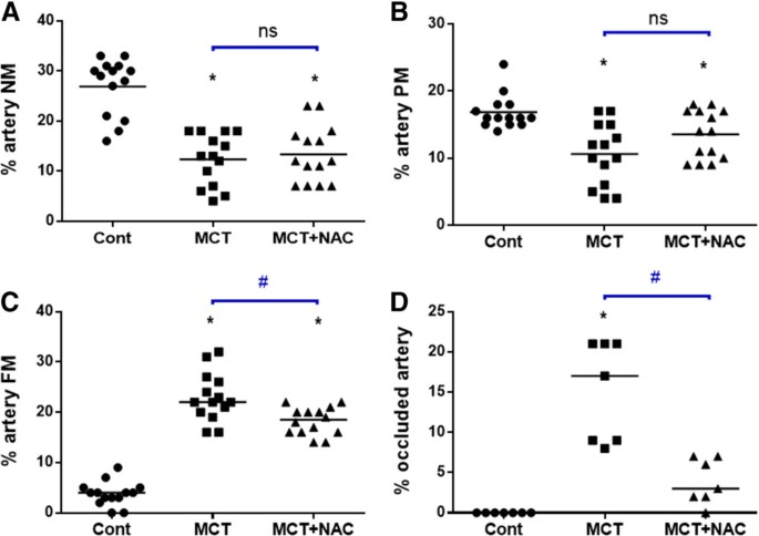 N-acetylcysteine improves established monocrotaline-induced