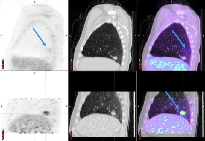 A prospective investigation into the clinical impact of 4D-PET/CT in
