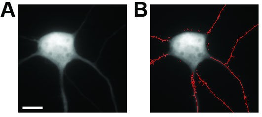 NeurphologyJ: An automatic neuronal morphology