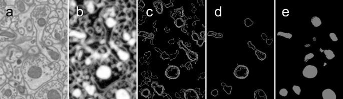 Method: automatic segmentation of mitochondria utilizing patch