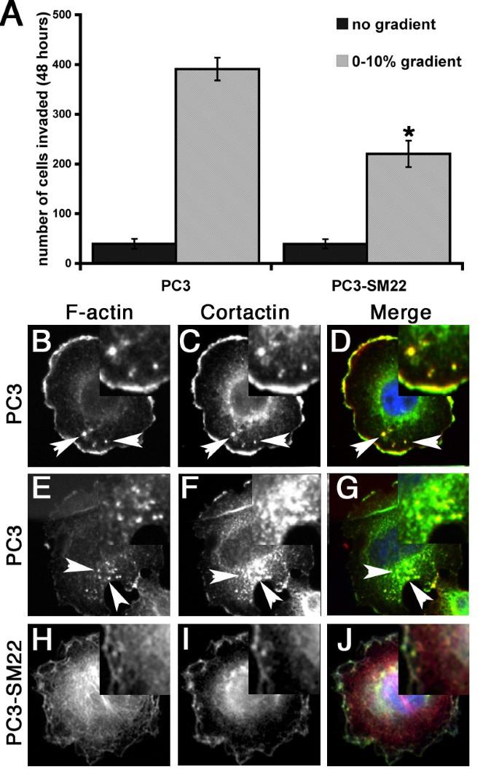 Depletion of the actin bundling protein SM22/transgelin