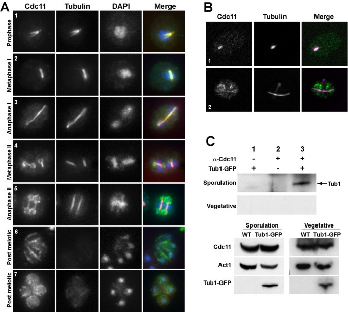 Septins localize to microtubules during nutritional limitation in ...